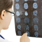 Brain Injuries Are Costly